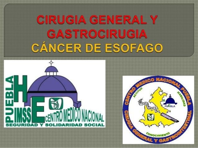  DEFICIÓN: Tumor originado alrededor del cardias, se divide dependiendo sus características anatómicas topográficas basad...