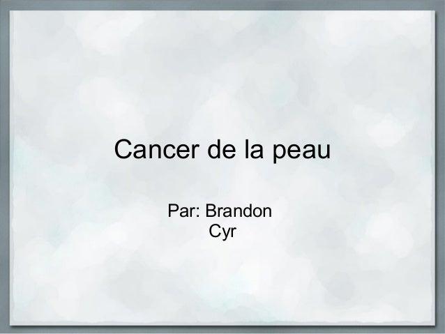 Cancer de la peau Par: Brandon Cyr