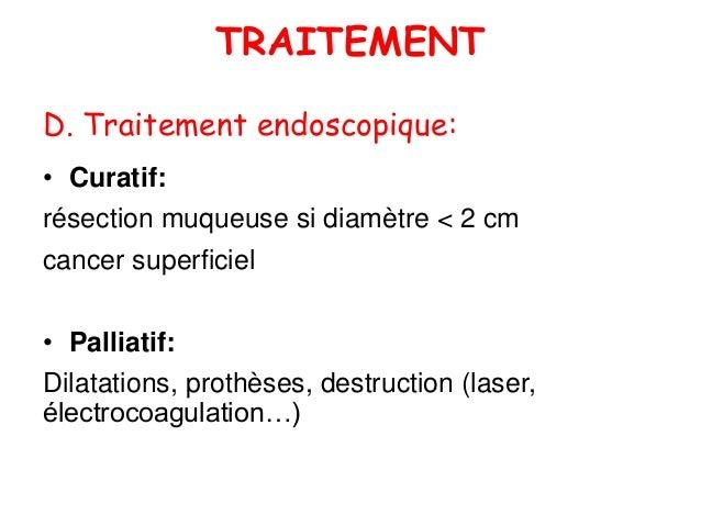 Cancer de l oesophage (1)