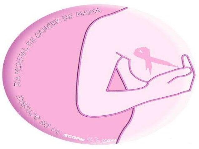 O câncer de mama é um tumor maligno que se desenvolve na mama como consequência de alterações genéticas em algum conjunto ...