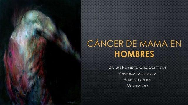 CÁNCER DE MAMA EN HOMBRES DR. LUIS HUMBERTO CRUZ CONTRERAS ANATOMÍA PATOLÓGICA HOSPITAL GENERAL MORELIA, MEX
