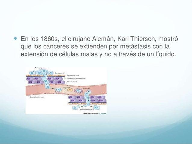  En los 1860s, el cirujano Alemán, Karl Thiersch, mostró que los cánceres se extienden por metástasis con la extensión de...