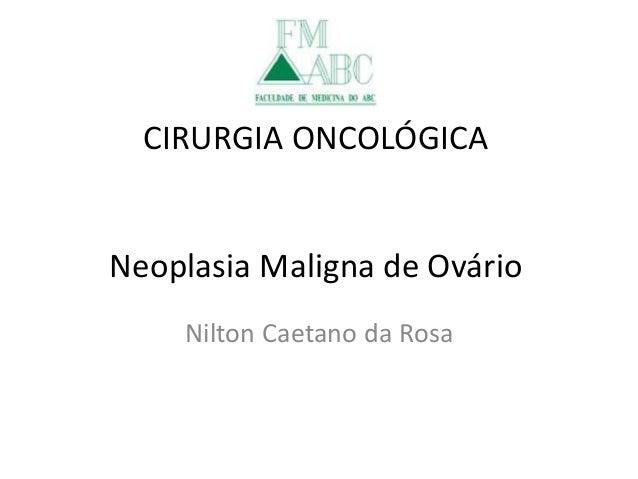 CIRURGIA ONCOLÓGICA Neoplasia Maligna de Ovário Nilton Caetano da Rosa