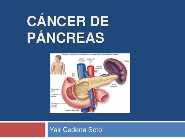 CÁNCER DE PÁNCREAS Yair Cadena Soto