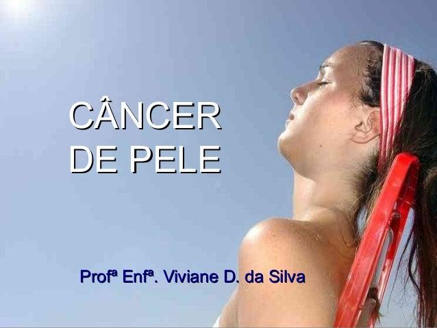 CÂNCERCÂNCER DE PELEDE PELE Profª Enfª. Viviane D. da SilvaProfª Enfª. Viviane D. da Silva