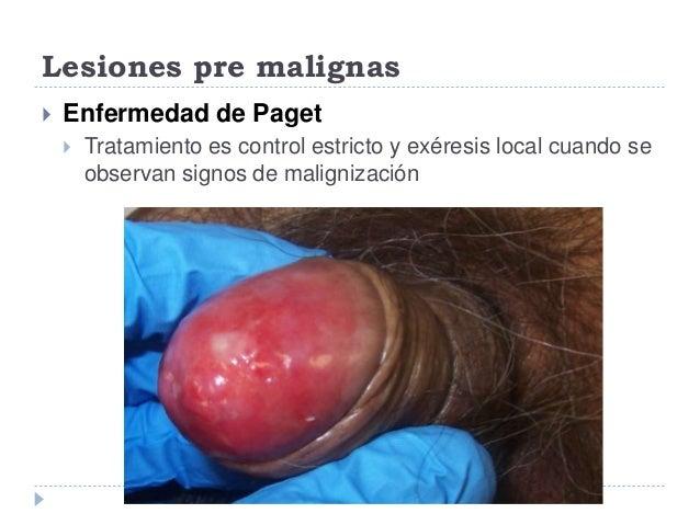sintomas de enfermedades del pene