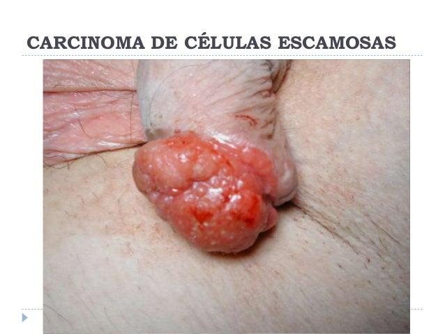 celulas del pene