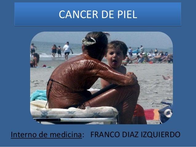 CANCER DE PIELInterno de medicina: FRANCO DIAZ IZQUIERDO
