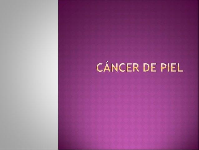 Registro Nacional de las Neoplasias en Méxicoel cáncer de piel desde hace algunos añosocupa el 1° lugar en hombres y en ...