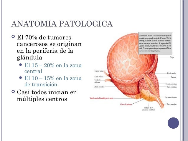 Anatomia patologica del cancer de prostata