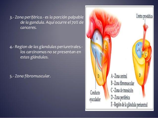 La operación láser de las venas varicosas