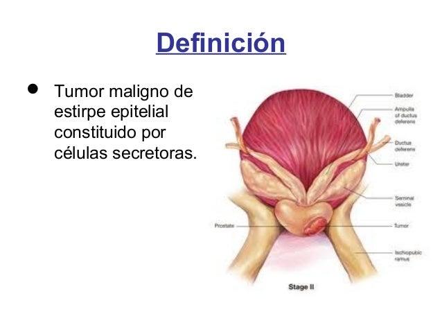 Cáncer de Próstata (Neoplasia maligna)