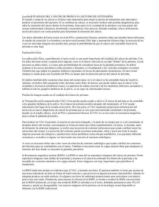 Único Anatomía De La Glándula De La Próstata Fotos Bosquejo ...