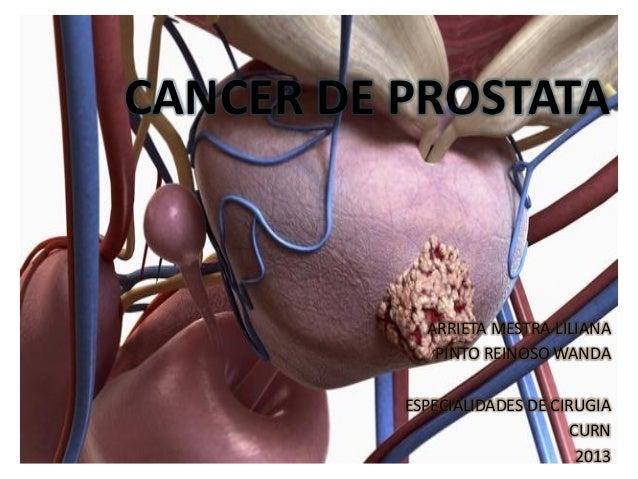 CANCER DE PROSTATA            ARRIETA MESTRA LILIANA             PINTO REINOSO WANDA          ESPECIALIDADES DE CIRUGIA   ...