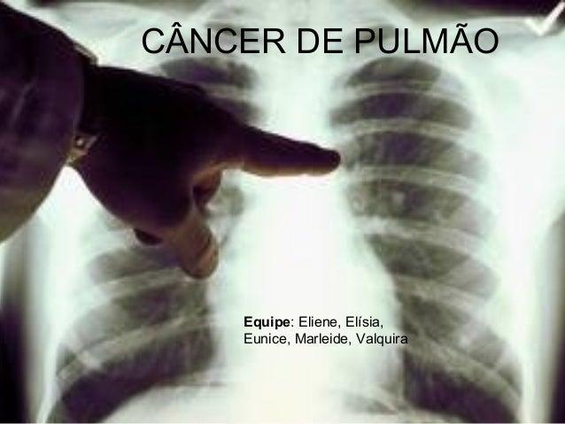 Fabuloso Cancer de pulmão TM43