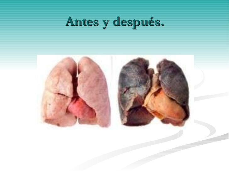 Cancer de pulmon - Banos reformados antes y despues ...