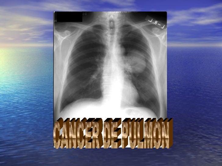 INTRODUCCION• El cáncer de pulmón es un gran problema  de salud pública y ocasiona más de  150000 fallecimientos al año en...