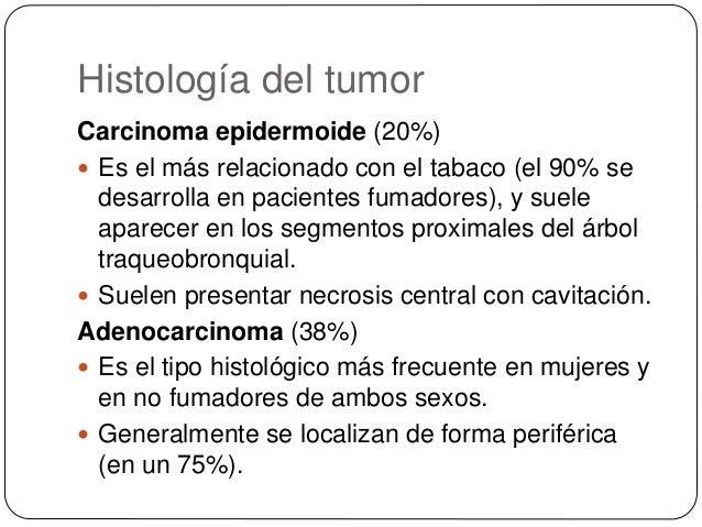 Histología del tumor Carcinoma bronquioloalveolar (raro)  Es un subtipo de adenocarcinoma.  Se puede presentar como un n...