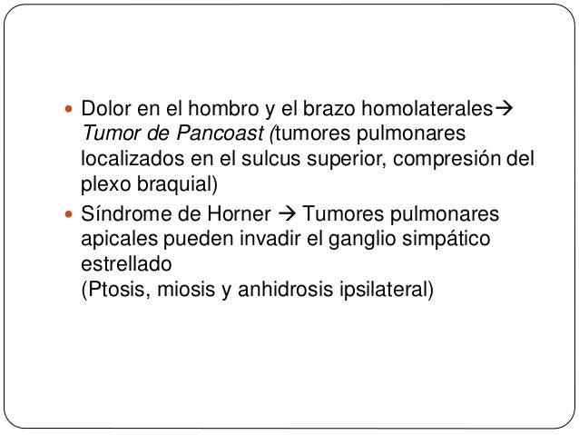  Disfonía (secundaria a parálisis de cuerdas vocales)metástasis ganglionares mediastínicas pueden comprimir el nervio la...