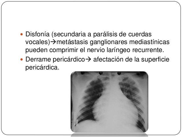  El cáncer de pulmón metastatiza frecuentemente a las glándulas adrenales (hasta en un 40% de los pacientes) y, ocasional...