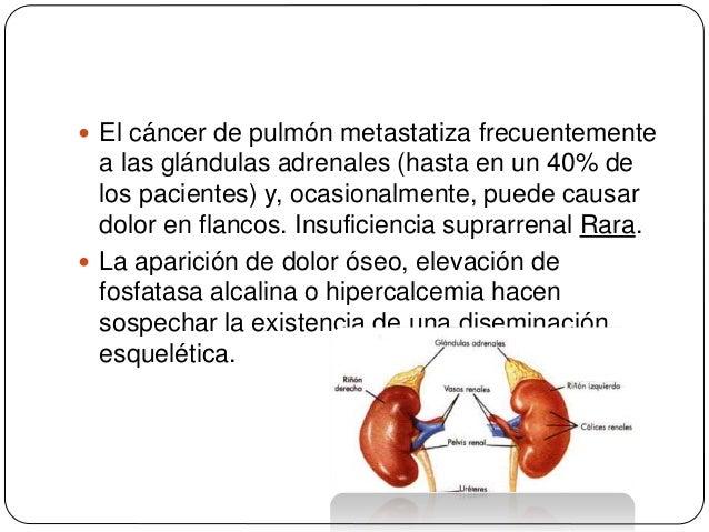 Diagnóstico precoz del cáncer de pulmón 6. Fontana RS. Screening for lung cancer. En: Miller AB, editor. Screening for Can...