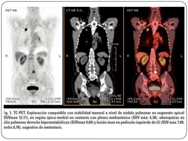 TNM Categoría M  Está basada en la localización y extensión de la enfermedad en tejidos y órganos a distancia. Las locali...