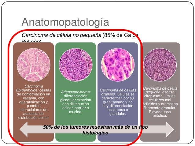 Anatomopatología Carcinoma de célula no pequeña (85% de Ca de Pulmón) Carcinoma Epidermoide: células de conformación en es...