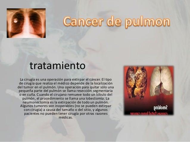 Cancer de pulmon alexandra - Tratamiento para carcoma ...