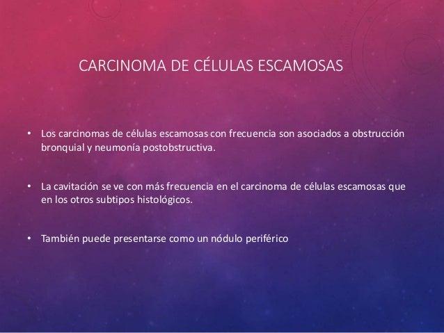 CARCINOMA DE CÉLULAS ESCAMOSAS • Incidencia del 38.4% de todos los tumores pulmonares. • 2/3 partes se presentan como tumo...