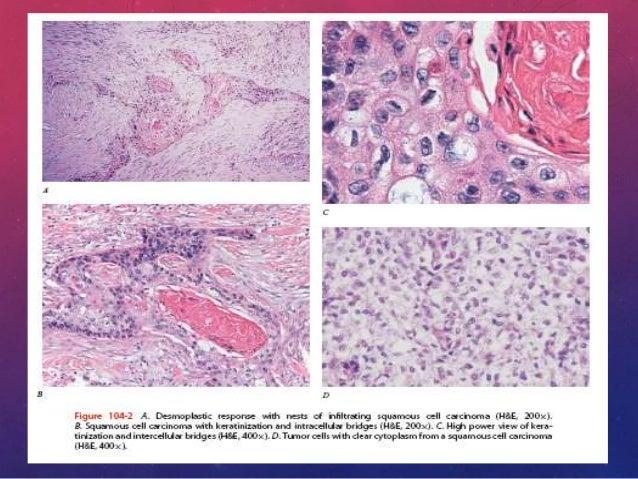 CARCINOMA BRONQUIOLOALVEOLAR • Si se identifican invasiones estromales, vasculares o pleurales en un adenocarcinoma que ti...