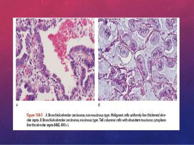CARCINOMA DE CÉLULAS GRANDES • Representan un poco menos del 10 por ciento de todos los cánceres de pulmón. • Se define en...