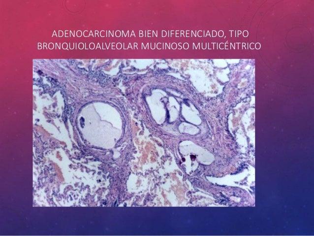 • El melanoma maligno y linfoma de células grandes también pueden simular carcinoma de células grandes, por lo general req...