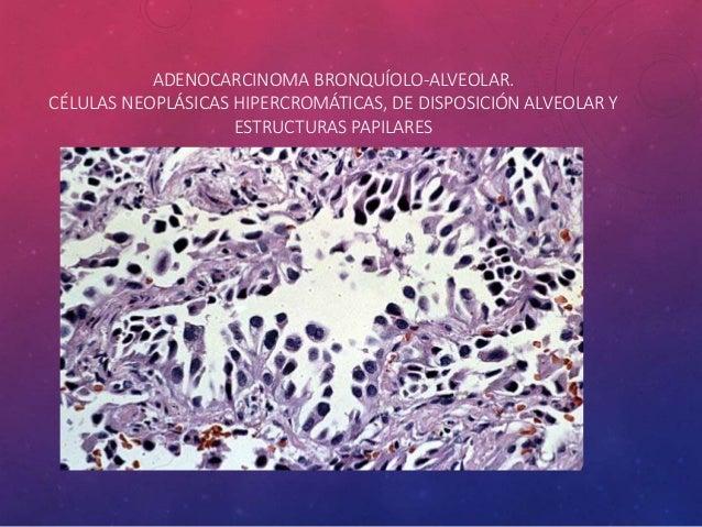 CARCINOMA SARCOMATOIDE • Los tumores que tienen elementos como el sarcoma, tales como células malignas fusiformes o gigant...