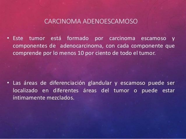 CARCINOMA SARCOMATOIDE • Estos tumores se han reportado tanto en zonas centrales y periféricas. • Con la excepción del bla...