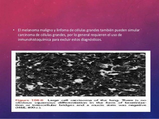 CARCINOIDE TÍPICO • Aparecen como masas polipoides amarillas o carnosas • El tumor suele tener un componente exofítico per...