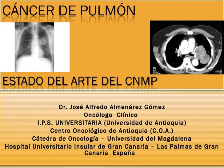 Dr. José Alfredo Almenárez Gómez Oncólogo  Clínico  I.P.S. UNIVERSITARIA (Universidad de Antioquia) Centro Oncológico de A...