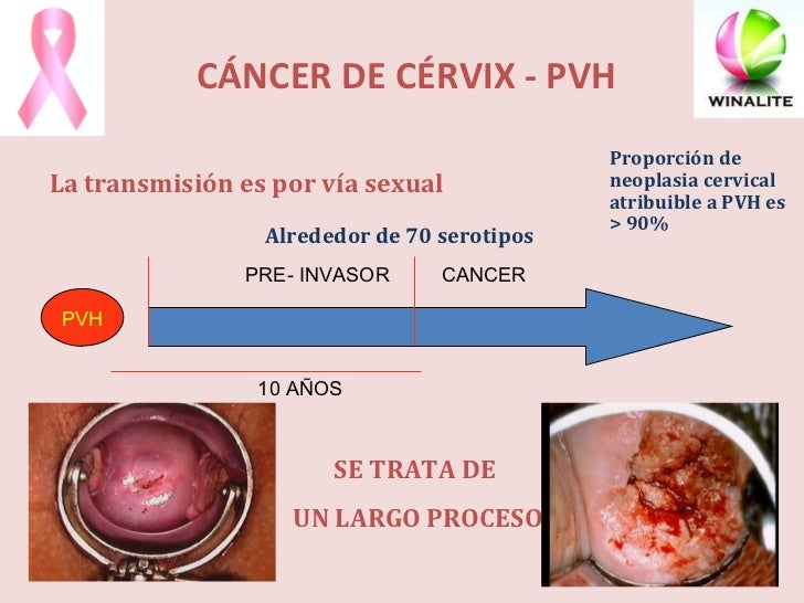 CÁNCER DE CÉRVIX - PVH <ul><li>La transmisión es por vía sexual  </li></ul>PRE- INVASOR CANCER PVH 10 AÑOS SE TRATA DE  UN...