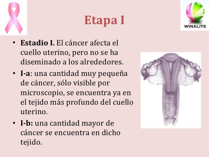 <ul><li>Estadio I. El cáncer afecta el cuello uterino, pero no se ha diseminado a los alrededores. </li></ul><ul><li>I-a ...