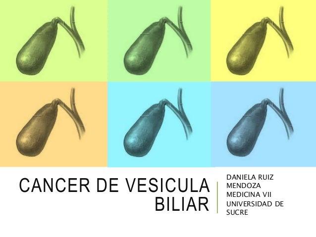 CANCER DE VESICULA BILIAR DANIELA RUIZ MENDOZA MEDICINA VII UNIVERSIDAD DE SUCRE