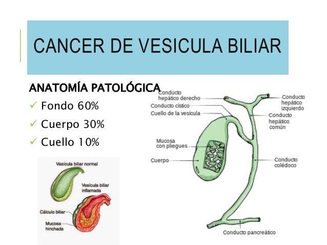 cancer-de-vesicula-biliar-7-638.jpg?cb=1449763592