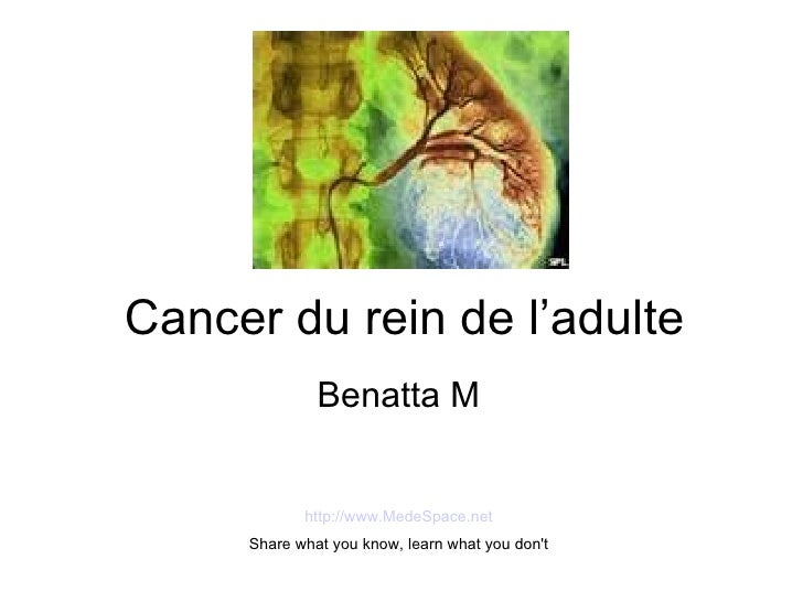 Cancer du rein de l'adulte Benatta M http://www.MedeSpace.net Share what you know, learn what you don't