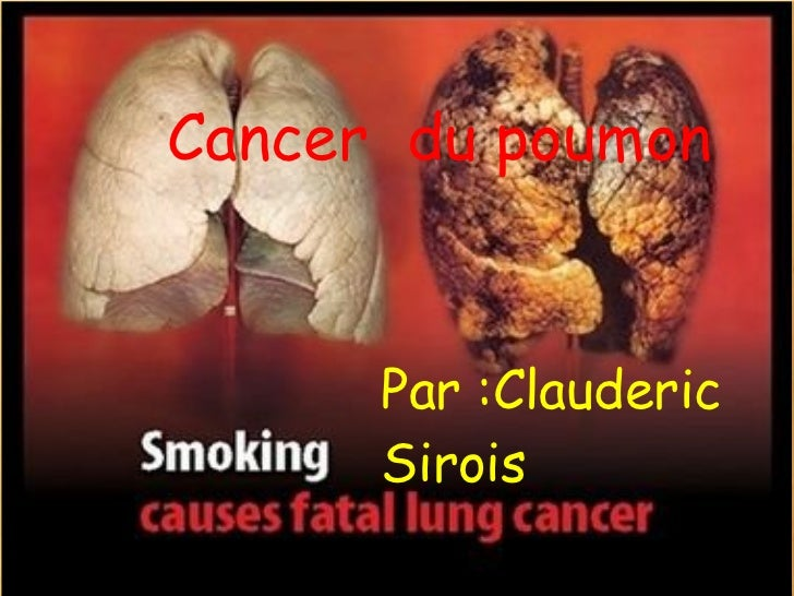 Cancer  du poumon      Par :Clauderic      Sirois