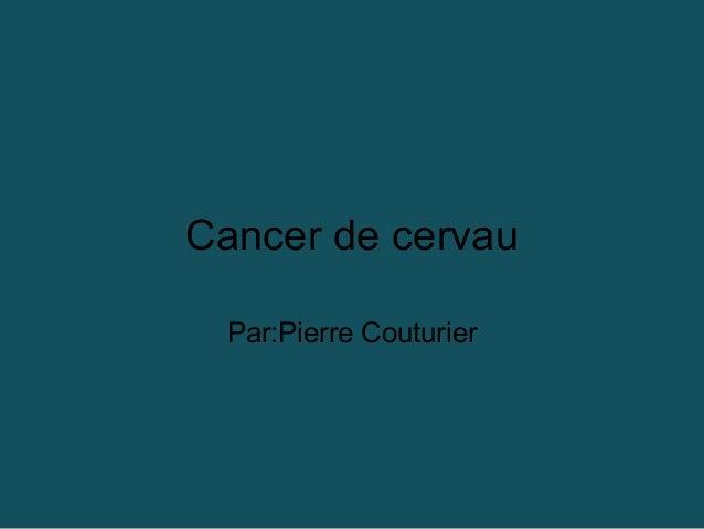 Cancer de cervau Par:Pierre Couturier