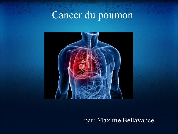 Cancer du poumon      par: Maxime Bellavance