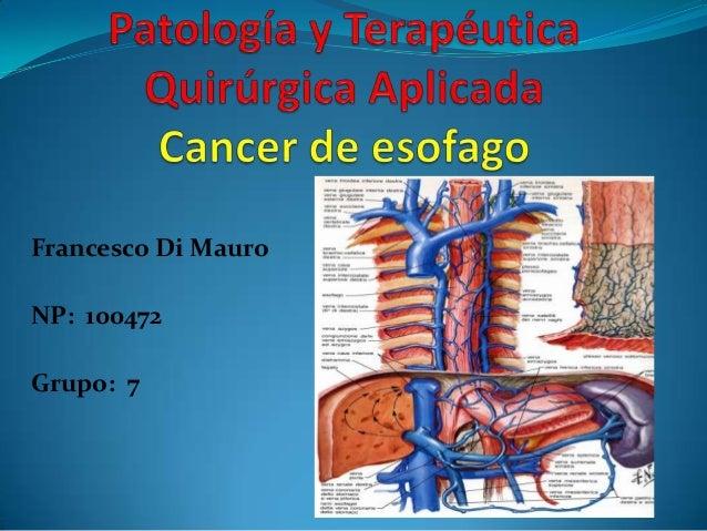 Francesco Di MauroNP: 100472Grupo: 7