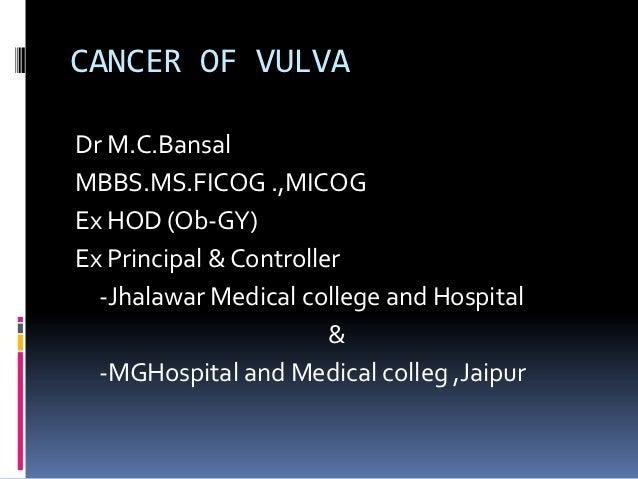 CANCER OF VULVADr M.C.BansalMBBS.MS.FICOG .,MICOGEx HOD (Ob-GY)Ex Principal & Controller  -Jhalawar Medical college and Ho...