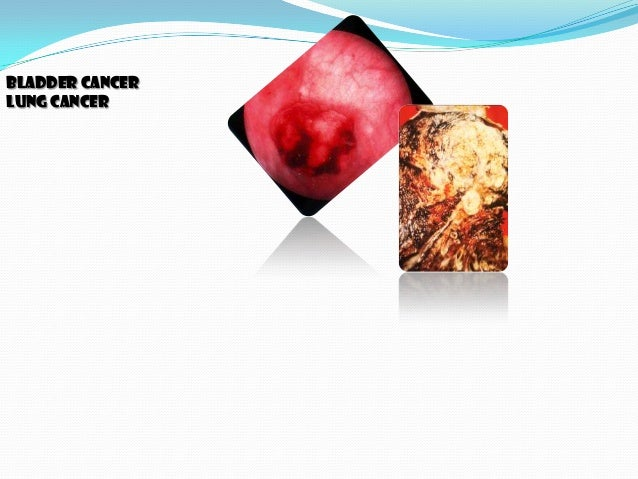 cancer and obesity radiation viruses Cancer 1  ,diet and obesity:- (30-35%),infections  and includes everything from natural sunlight to industrial pollution to viruses to behavioral.