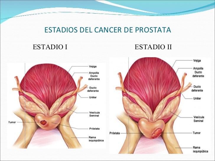 A fisiopatologia do melasma uma abordagem geral e o tratamento com ácido tranexâmico 10