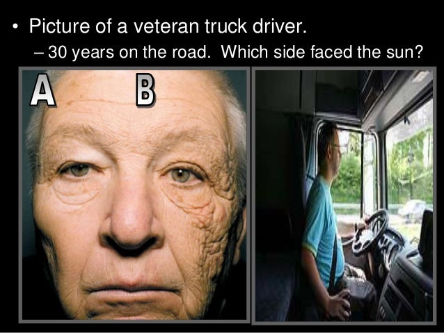 Image result for driver skin cancer