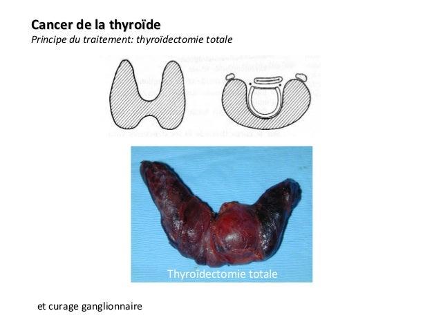traitement de la thyroïde